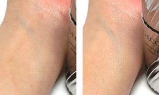コスメデコルテ ホワイトロジスト ブライト エクスプレスを使っている肌