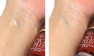 サイクルプラス エンリッチ コンセントレート セラムを使っている肌の写真