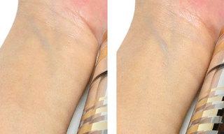 DHC GEローション モイストを使っている肌の写真