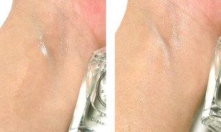 LNC ディアセラムを使っている肌の写真