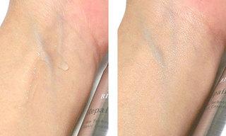 リソウ リペアジェルを使っている肌の写真